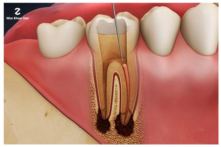 Điều trị nội nha để bảo toàn răng thật hiệu quả nhất