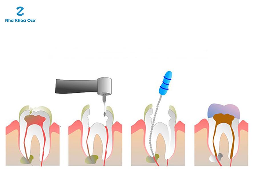 Trám bít ống tủy để bảo vệ tủy răng