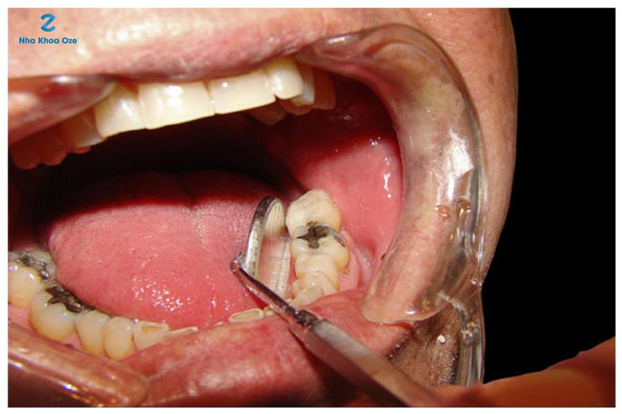 Những dấu hiệu nhận biết răng sâu vào tủy