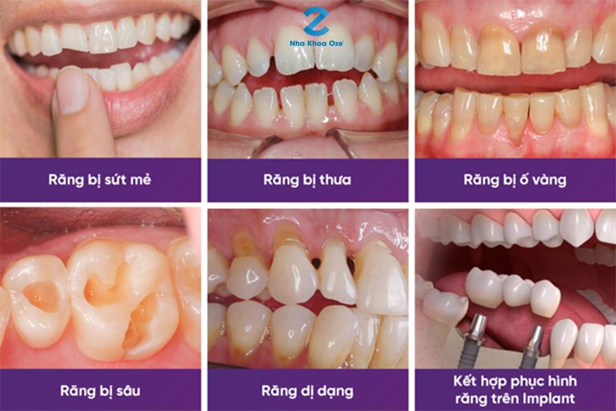 Các trường hợp nên làm răng sứ thẩm mỹ