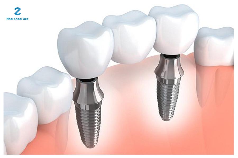 Lắp phần mão sứ vào phần trụ implant