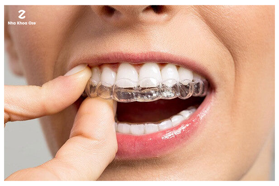 Ngăn ngừa được tiêu xương do mất răng