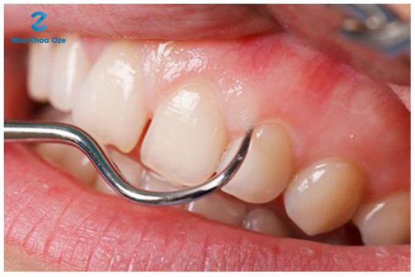 Viêm quanh răng xảy ra do một số sang chấn răng