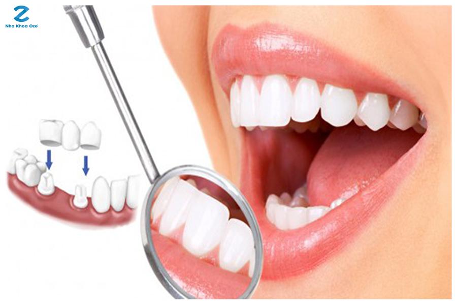 Những ưu điểm vượt trội của phương pháp bọc răng sứ