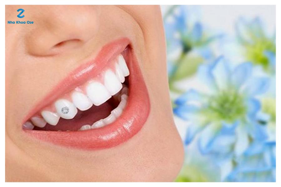 Đính đá vào vị trí răng nanh (răng số 3)