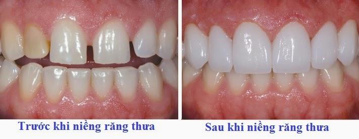 Ảnh minh họa trước và sau khi niềng răng