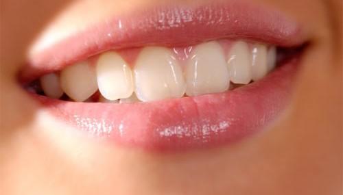 Ảnh minh họa về nụ cười rạng rỡ khi có một hàm răng đều và sáng bóng