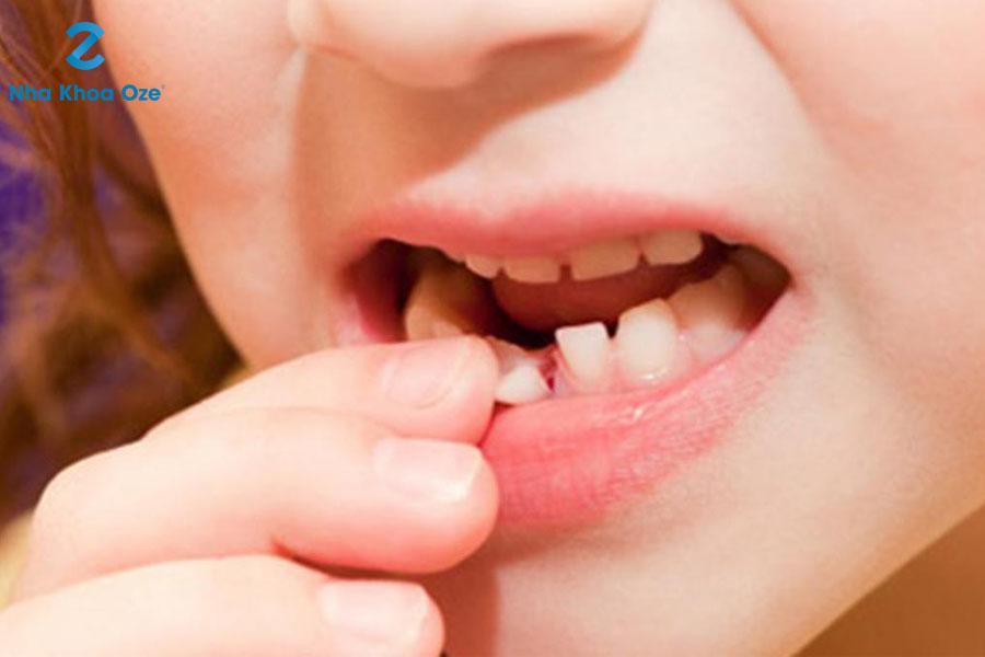 Các trường hợp không được nhổ răng sữa cho bé tại nhà