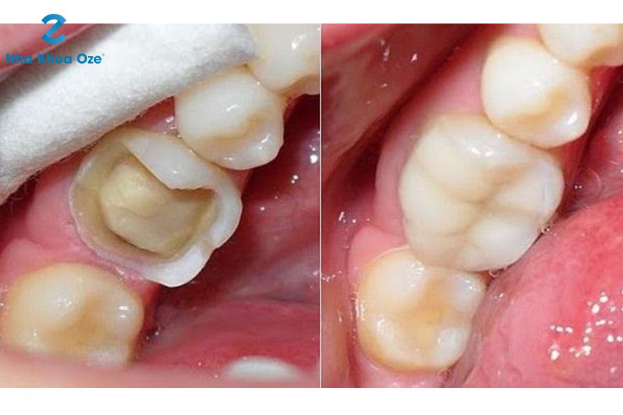Hàn răng có gây đau nhức không?