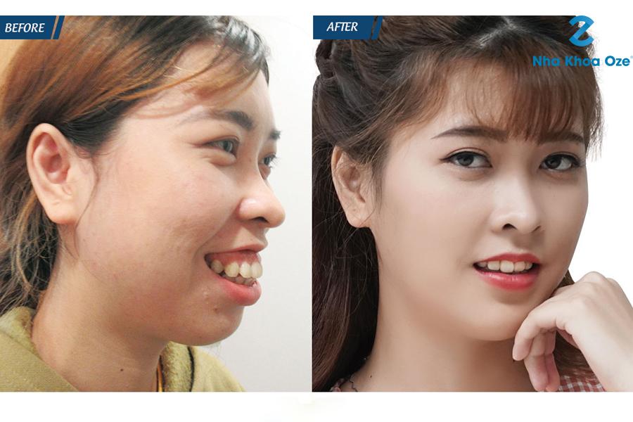 Bệnh nhân sau khi chữa cười hở lợi