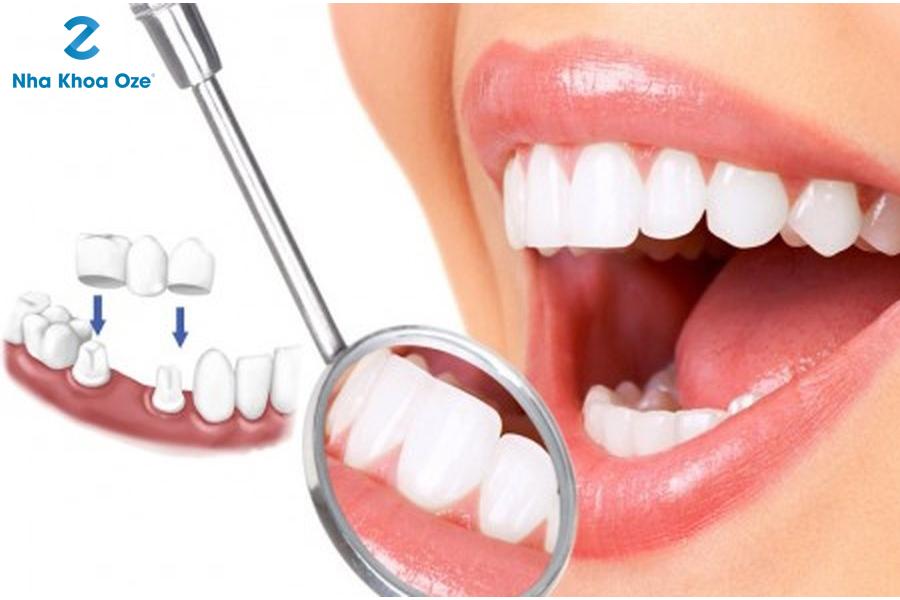 Bọc răng sứ là phương pháp nha khoa phục hình răng cố định
