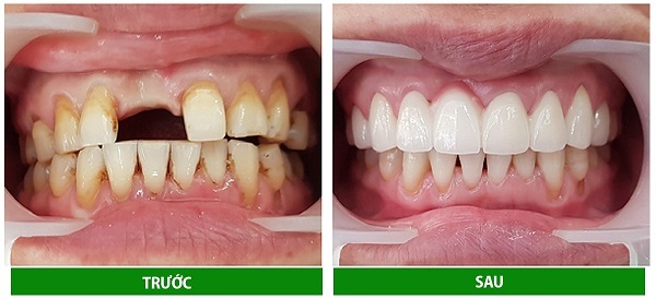Bọc răng sứ mang lại tính thẩm mỹ cao cho hàm răng