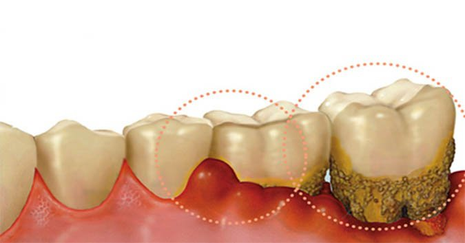 Các mảng bám trên răng tích tụ trong thời gian dài gây viêm chân răng
