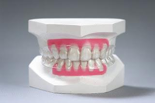 Cách sử dụng khay niềng răng invisalign