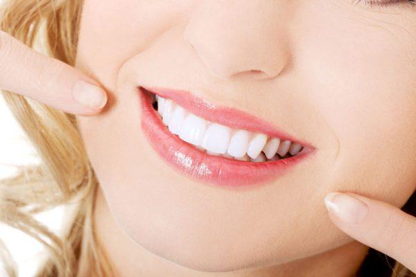 Cần lưu ý những gì khi thực hiện tẩy trắng răng