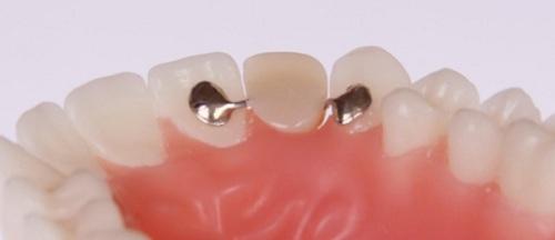 Cầu răng sứ có cánh dán được dùng với vùng răng trước