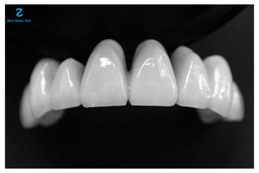 Răng sứ được nhiều người ưa chuộng