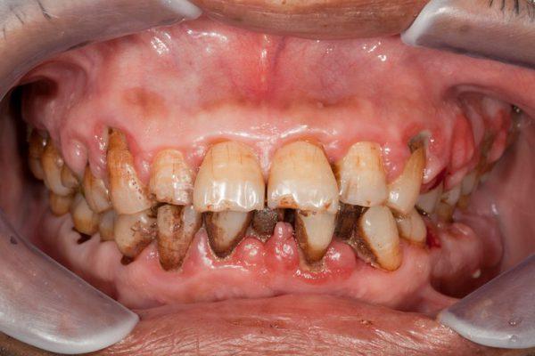 Chân răng bị đen dẫn đến một số bệnh lý về răng nguy hiểm