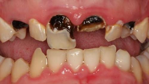 Chân răng bị đen do sâu