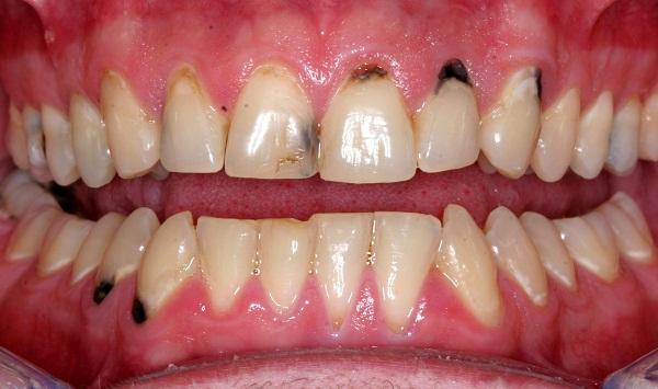 Chân răng bị đen