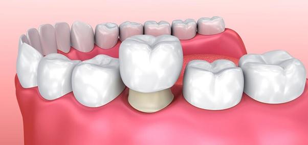 Chân răng sẽ được mài mòn và bọc răng sứ bên ngoài