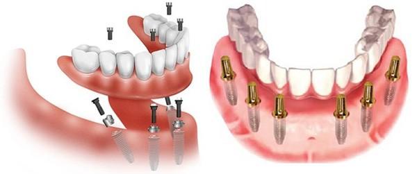 Có thể vệ sinh răng miệng một cách dễ dàng nhất
