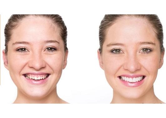 Cười hở lợi khiến người bệnh bị mất tự tin khi cười
