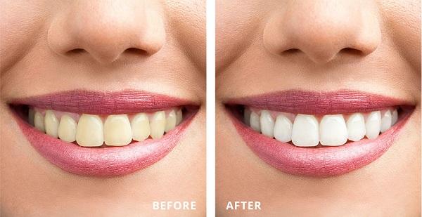Dặn dò bệnh nhân các lưu ý sau khi tẩy trắng răng laser whitening