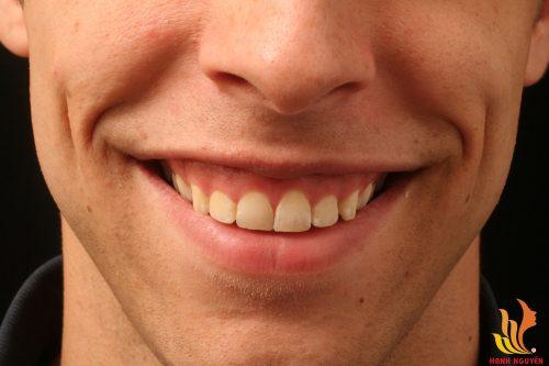 Đàn ông cười hở lợi thường không thành công trong sự nghiệp