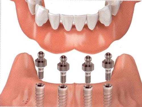Đặt trụ implant vào xương hàm vùng mất răng