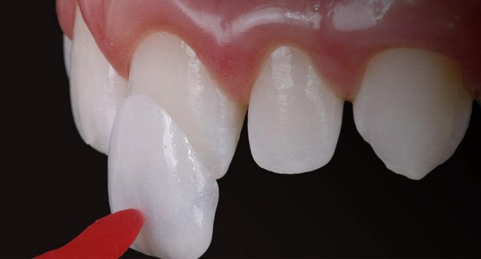 Đây là loại răng sứ được sử dụng phổ biến