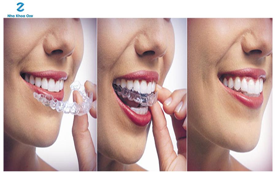 Những ưu điểm vượt trội của niềng răng invisalign