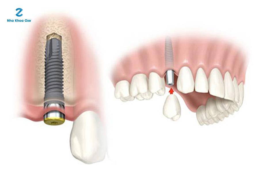 Hình ảnh răng được cấy ghép implant vô cùng chắc chắn