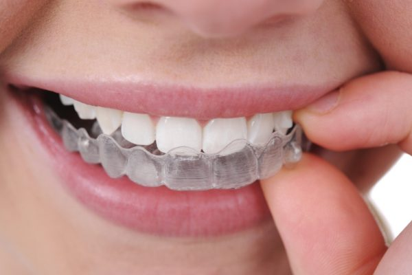 Đeo máng làm trắng răng tại nhà