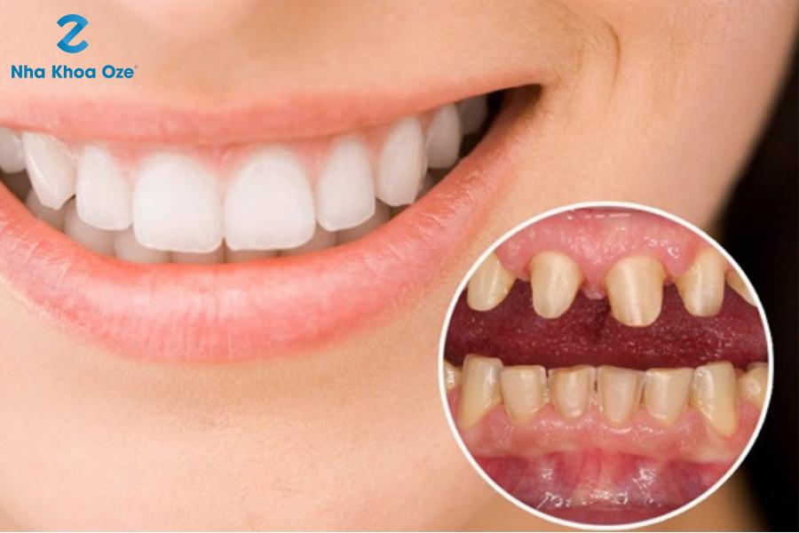 Độ bền của răng sứ cũng phụ thuộc một phần vào loại răng mà bạn lựa chọn