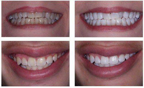 Độ bền của răng sứ phụ thuộc cùi răng