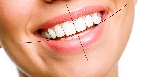 Đường cung răng đẹp