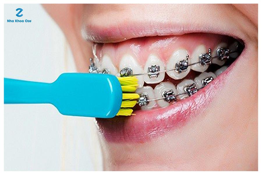 Chú ý việc vệ sinh răng miệng trong quá trình niềng răng