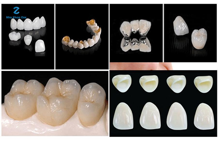 Chăm sóc các loại răng sứ