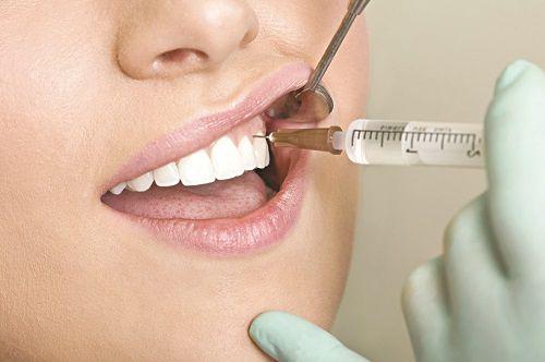 Gây tê nên nhổ răng khôn sẽ không đau
