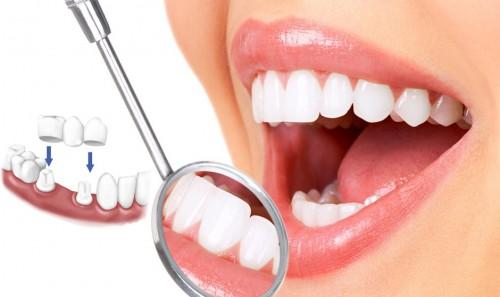 Giải đáp bọc răng sứ có đau hay không