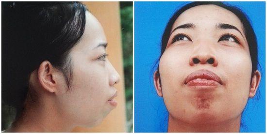 Hàm hô ảnh hưởng tới tính thẩm mỹ của cả gương mặt