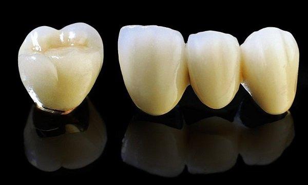 Hình ảnh răng sứ Titan