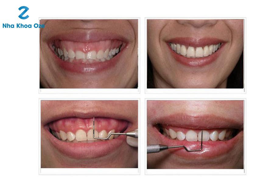 Làm dài chân răng để chữa cười hở lợi