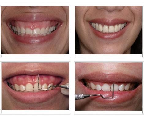 Làm dài chân răng để chữa trị cười hở lợi