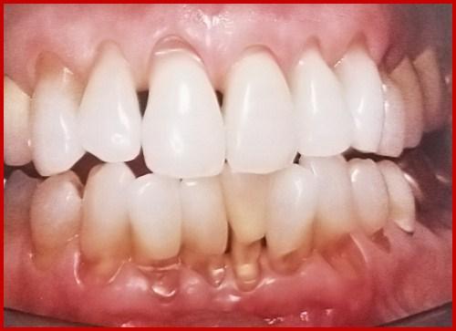 Làm mất thẩm mỹ của hàm răng