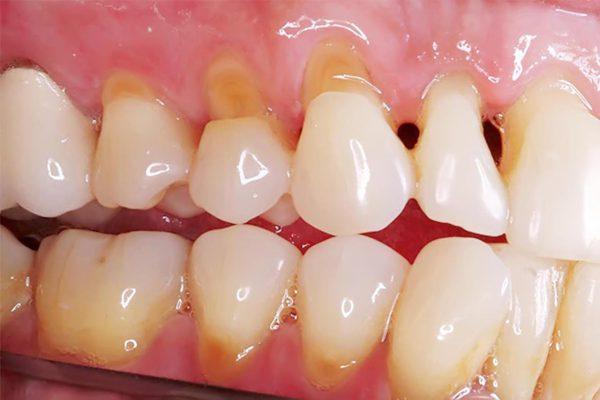 Lâu ngày, phần lợi tụt xuống, lợi và xương hàm yếu dần, gây rụng răng