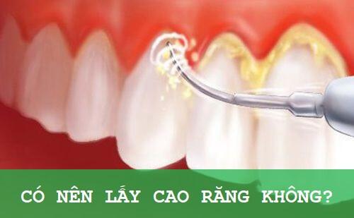 Lấy cao răng giúp loại bỏ những mảng bám ố vàng cứng đầu