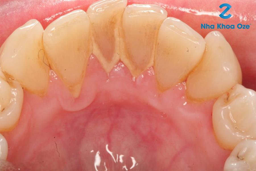 Lấy vôi răng là gì?