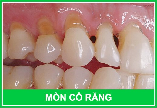 Mòn cổ răng gây tổn thương tủy răng